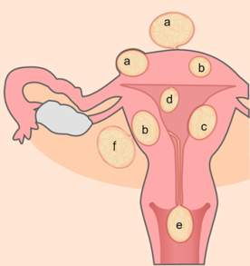 What Are Uterine Fibroids?: Common Causes, Signs & Symptoms and Natural Treatment